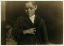 A boy squints in bright sunlight, his dark jacket held closed by his right hand across his chest, showing his thumb, pointer, and pinky fingers with the scar between them where two fingers are missing.